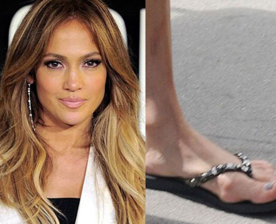 celebrity with bunion
