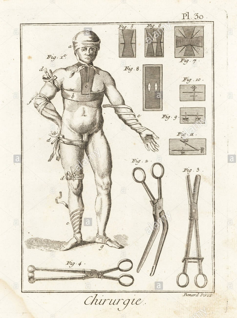 18 th century bandage sketch